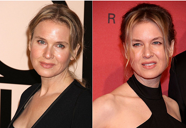 renee zellweger surgery